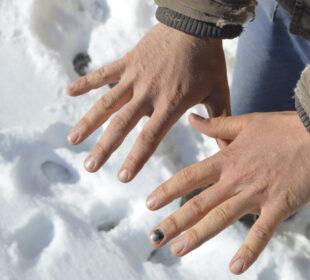 Heridas producidas por los trabajos y el frio.